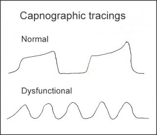 Capnographic tracings
